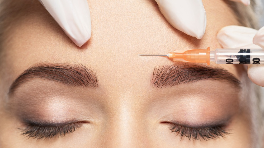What you should know before opting for Botox Treatment